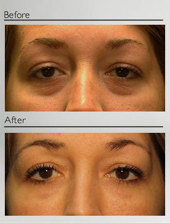 Fat injection (lower eyelids)-1