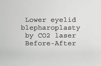 (boîte) lower eyelid with laser CO2