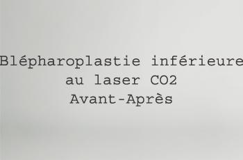 (boîte2)Blépharoplastie Inférieure au laser CO2